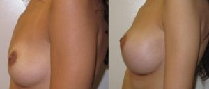 patient3 3 300x128 Breast Plastic Surgery Before & After