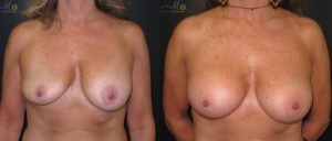 patient8 1 300x128 Breast Plastic Surgery Before & After