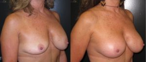 patient8 2 300x128 Breast Plastic Surgery Before & After