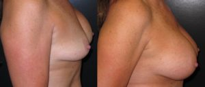 patient8 3 300x128 Breast Plastic Surgery Before & After