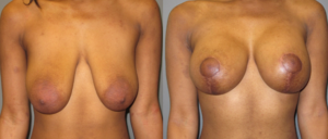 patient9 1 300x128 Breast Plastic Surgery Before & After