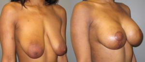 patient9 2 300x128 Breast Plastic Surgery Before & After
