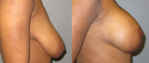 patient9 3 300x128 Breast Plastic Surgery Before & After