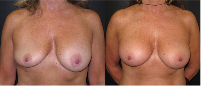 Patient 8 Front Breast Plastic Surgery Before & After