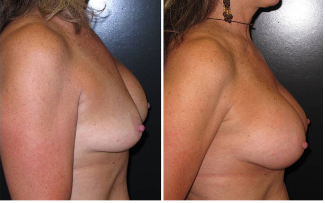 Patient 8 Side Breast Plastic Surgery Before & After