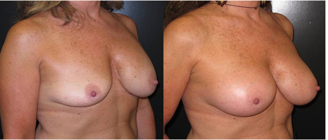 Patient 8 angle Breast Plastic Surgery Before & After