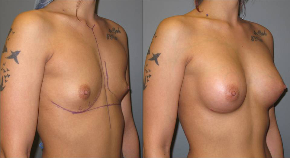 Breast Augmentation Angle 9 Breast Plastic Surgery Before & After