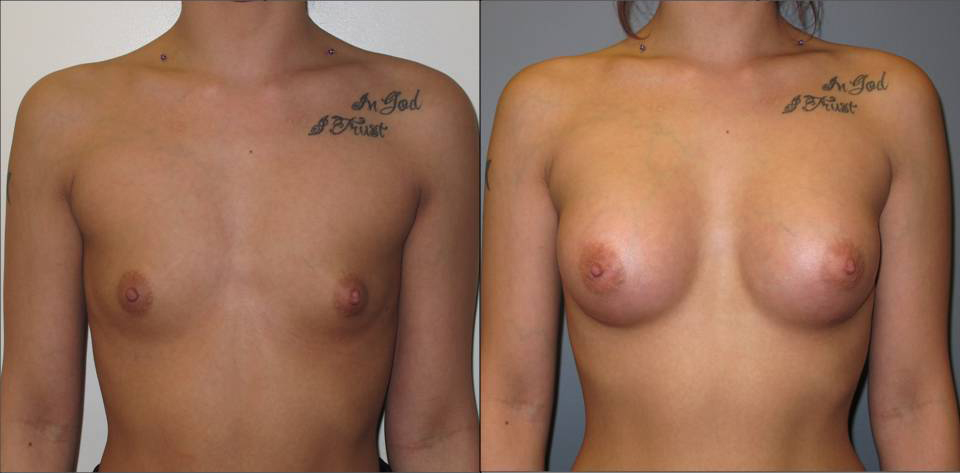 Breast Augmentation Front 9 Breast Plastic Surgery Before & After